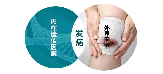 南昌冬季治疗白癜风的优势