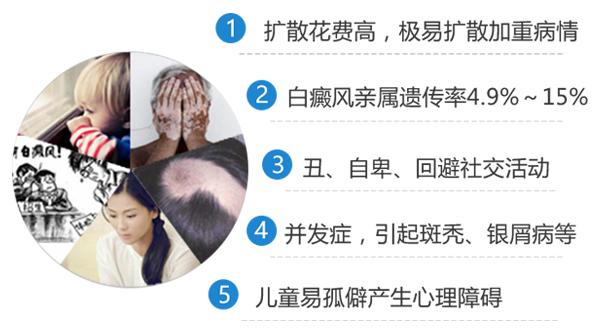 女性患颈部白癜风危害大吗