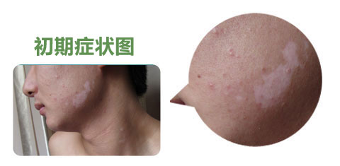 白癫风是后天性皮肤素脱落性皮肤