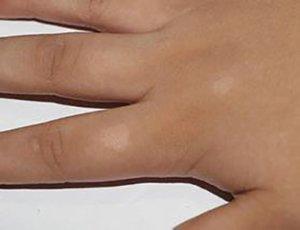 珠山区白癜风患者运动如何避免损伤?