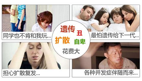 白癜风的病情会恶化吗?