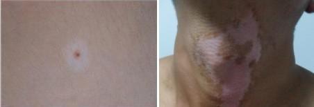 男性颈部白癜风怎么治疗?