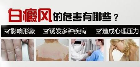 萍乡白癜风带来的不利影响?