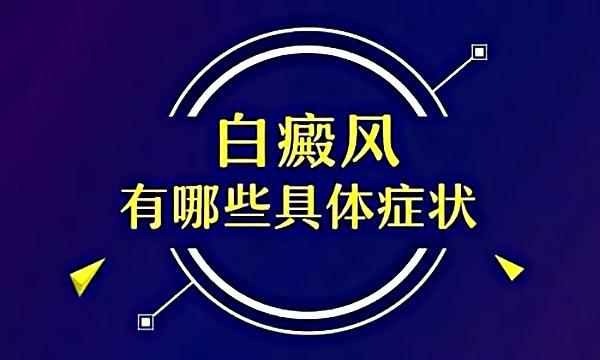 景德镇白癜风晚期症状表现严重
