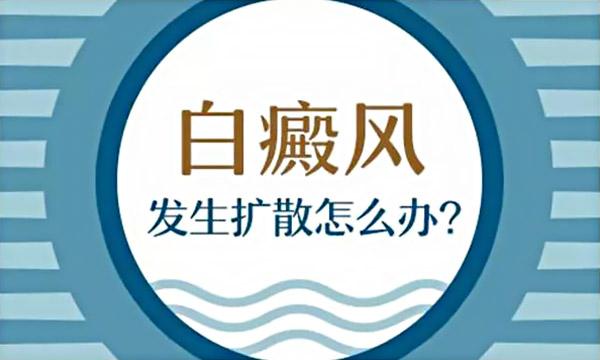 鹰潭白癜风医院怎么走 哪些原因会引发白斑扩散?