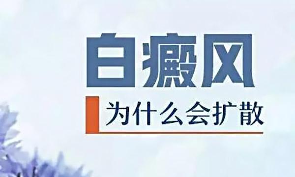 杭州让白癜风更难治疗的原因是什么