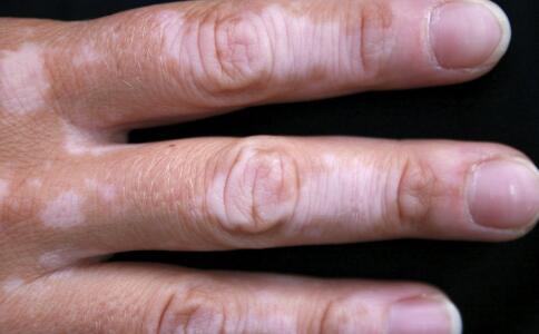 渝水区白癜风患者护肤心得有哪些?