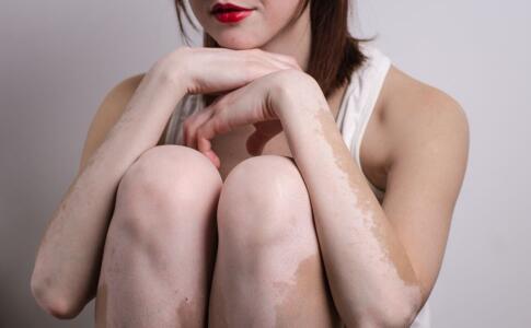 白癜风患者能不能化淡妆