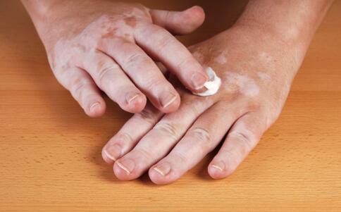 孩子手臂上皮肤发白点的原因是什