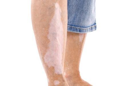 九江男性脚部白斑用盐水泡有用吗