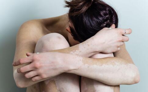 女性白癜风发病的原因有哪些