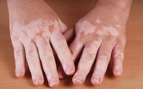导致双手白癜风的病因有哪些