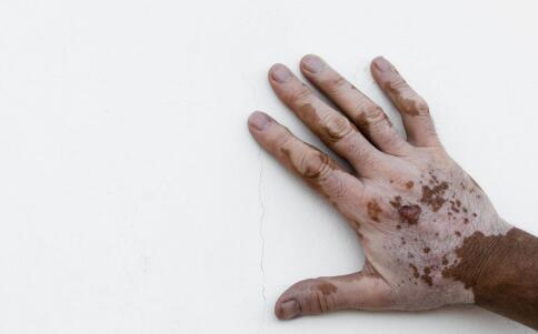 信州区出现这些症状白斑患者