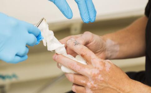 鹰潭中医治疗白癜风医院 外伤导致的白癜风需要怎么诊疗?