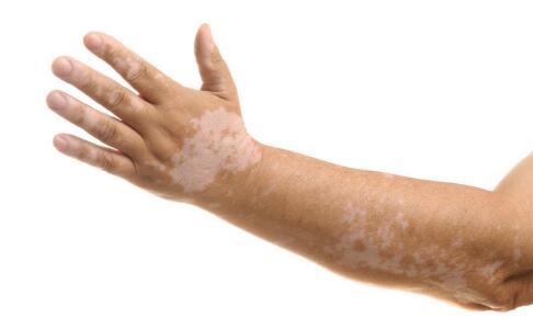 手臂的白斑扩散不知道什么原因也不知道怎么办?