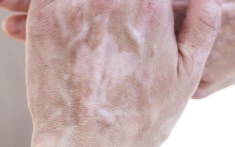 白斑处会出现红肿的状况吗 鹰潭白癜风病医院有哪些