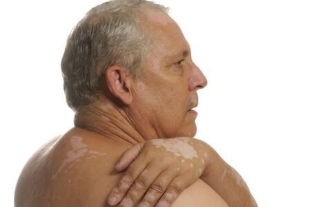老年人护理预防白癜风