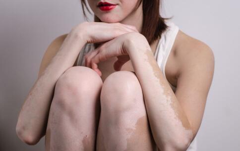 渝水区白癜风女性患处化妆会怎么样