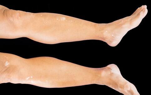 腿部有白斑怎样判断是否白癜风?