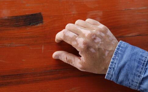 白癜风有哪些潜在的危害 萍乡最快治疗白癜风