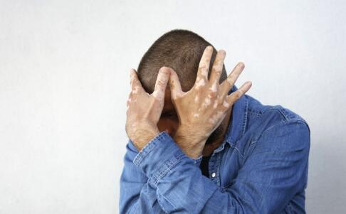 渝水区白斑对患者的心理有着怎样的影响?