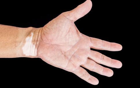 如何消除手部白斑?南昌治白癜风最好的医院