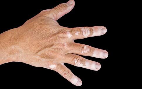 手指白癜风