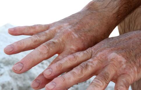 老年白斑!老年人白斑初期症状?
