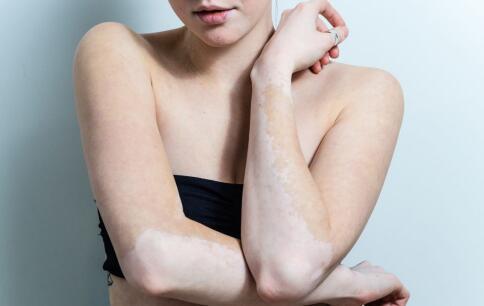 白癜风患者好的面部护理宝藏方法