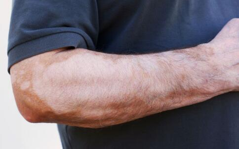 鹰潭白癜风冶疗方法 白癜风患者增强免疫力很有益处