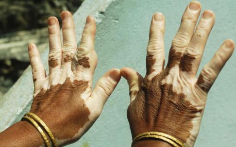 手部白癜风的发病原因?南昌治疗白癜风