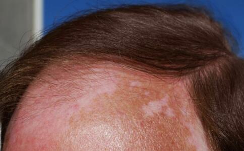 导致面部患上白癜风的原因