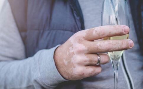 身上有白癜风但酒瘾上来了能喝一点小酒吗?