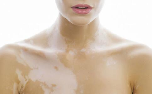 女性患上白癜风的因素