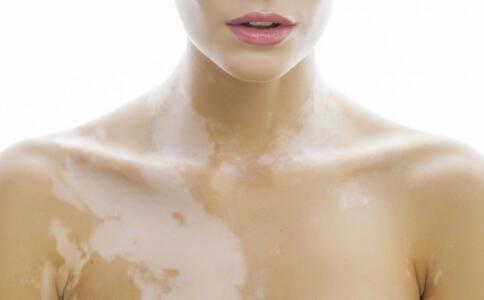 鹰潭白癜风治疗那家医院好 胸部患上白斑饮食要注意什么呢?