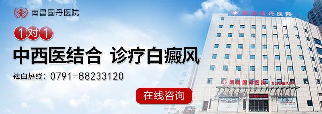 宜春治疗白癜风医院