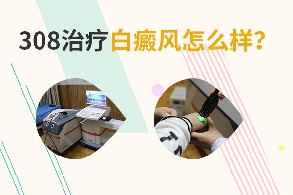新余白癜风用308nm准分子激光治疗,对哪个部位有效