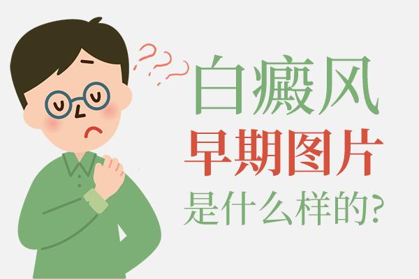 口腔患有白癜风早期图片是什么样的?病因是什么