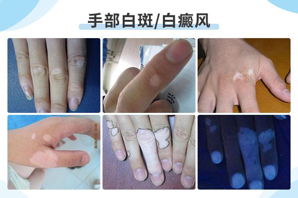 新余白癜风治疗医院,手部白癜风病症如何护理