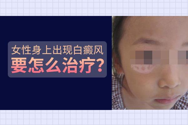 苏州专业白癜风医院,女性生活中怎么护理合适?